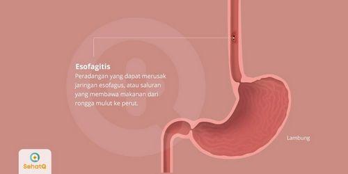 Gejala Umum Esofagitis Meski esofagitis tidak menimbulkan gejala