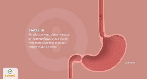 Gejala Umum Esofagitis dapat relaks sepenuhnya, menyebabkannya mendorong