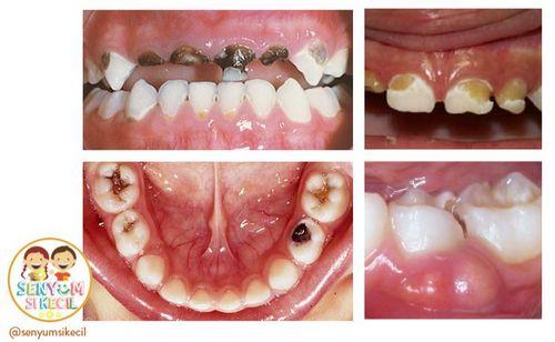 Tanda-tanda Karies Gigi Untuk mencegah terjadinya karies gigi