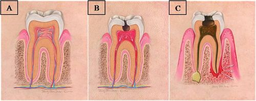 Tanda-tanda Karies Gigi Tanda karies gigi yang